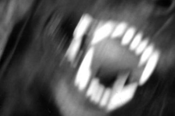 Воронежский суд оценил укусы собаки в 7 тысяч рублей